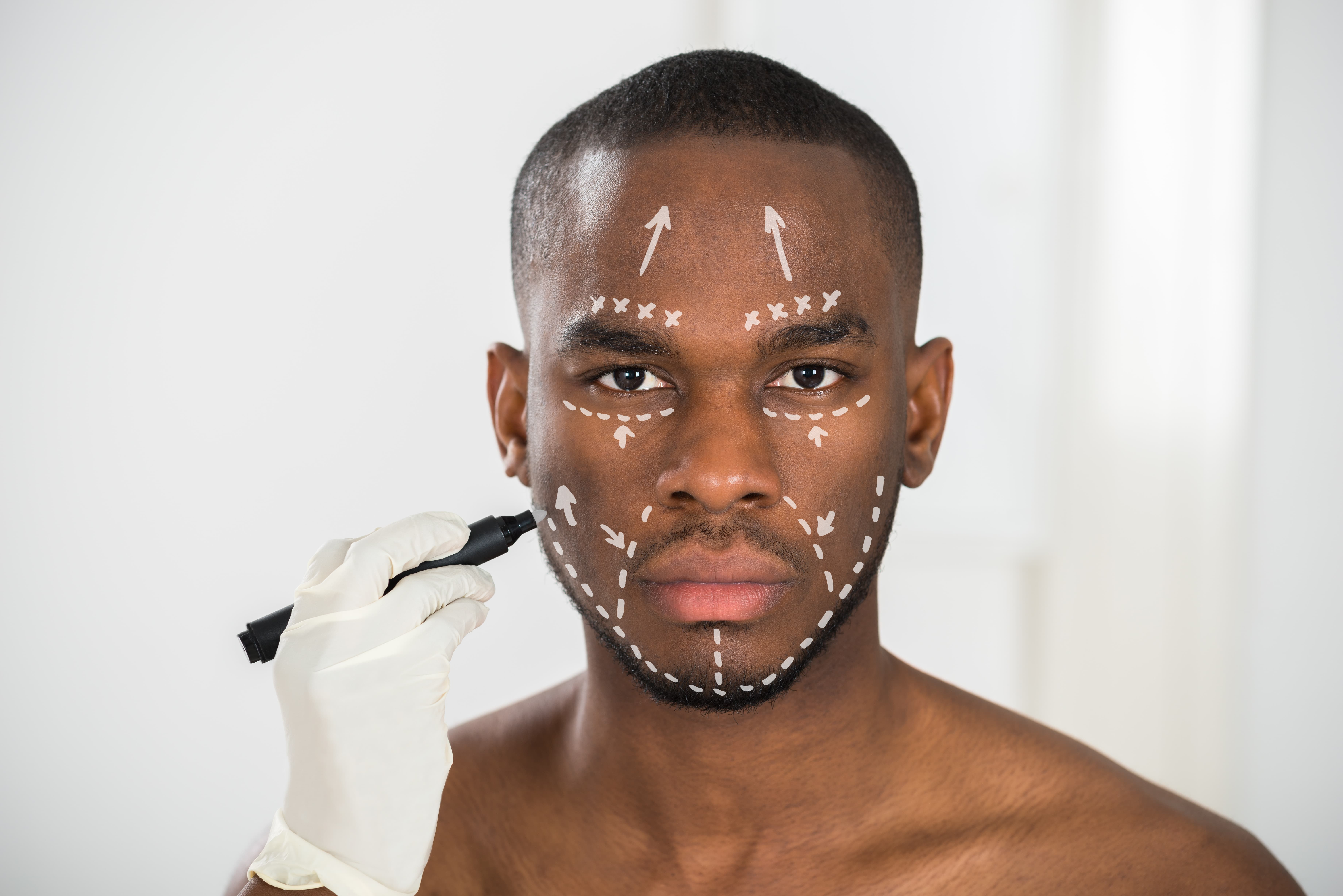 Static Wrinkle Reduction, marks on mans face, Cosmetic Treatments, Cutting Edge Aesthetics, East Sussex