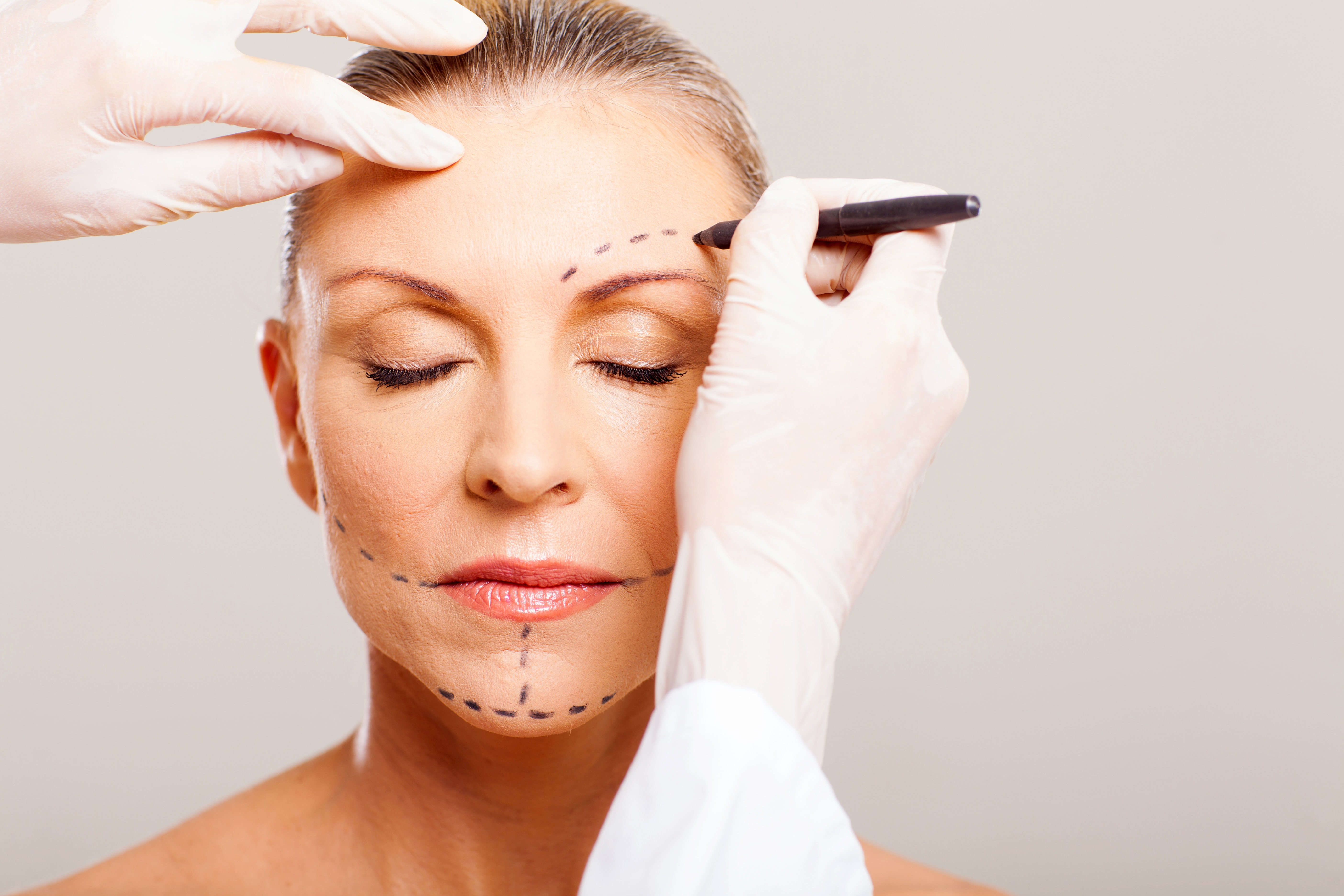 Woman's face, prep for facial wrinkles treatment, Cosmetic Treatment, Cutting Edge Aesthetics, East Sussex